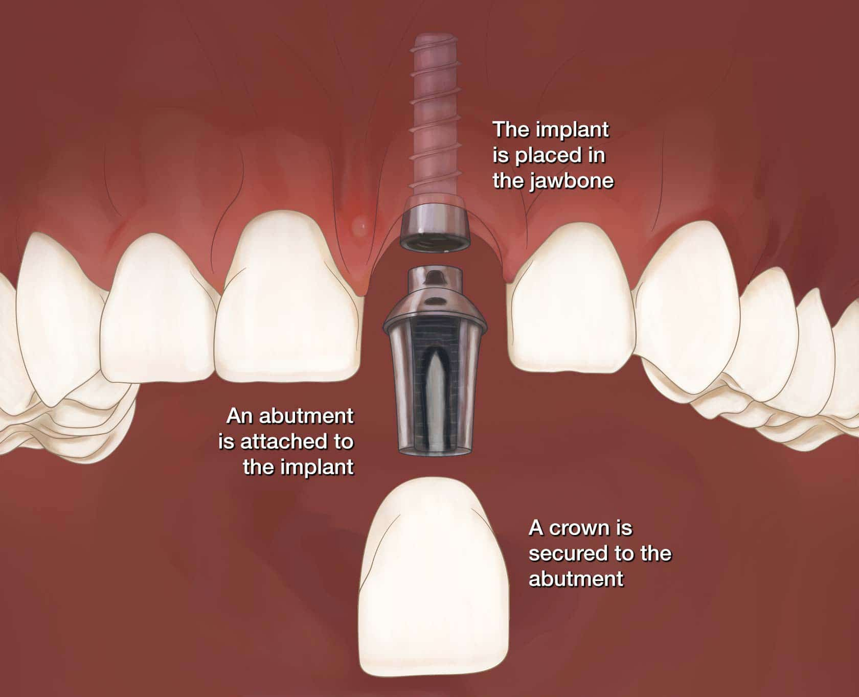 how we replace a single tooth with an implant